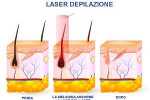 Epilatore laser