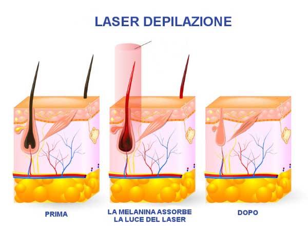 Foto epilator e laser recensioni