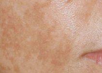 Come eliminare le macchie sul viso