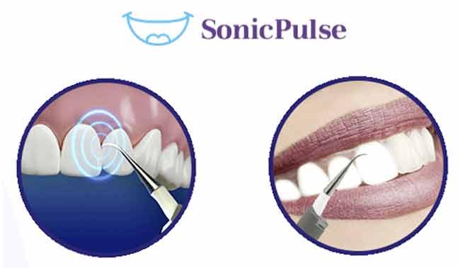 Benefici di Sonic Pulse