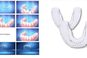 Healthy Smile: Funziona questo bite dentale? Recensione, opinioni e prezzo
